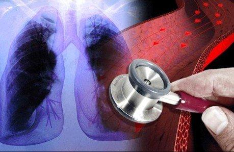 Piden establecer atención universal para hipertensión arterial pulmonar
