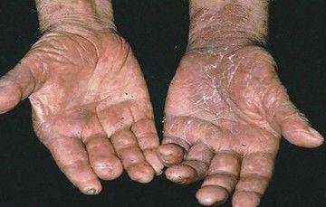 Lepra: una enfermedad infecciosa