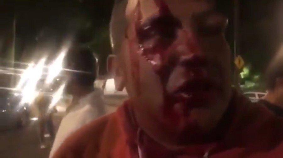 Policías golpean y roban equipo a periodistas de la CDMX