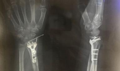 Necesario modificar factores de riesgo para evitar osteoporosis