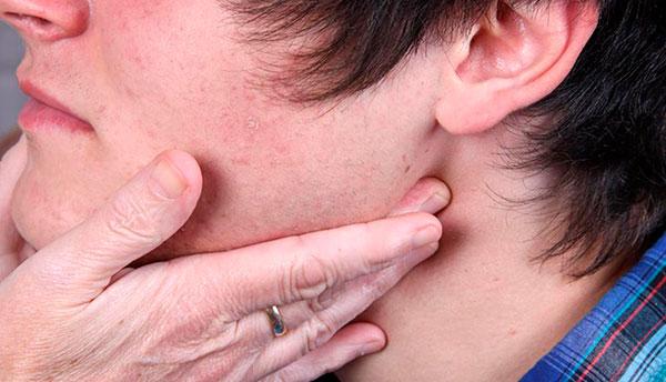 Vacunación, aislamiento y reposo, ante casos de paperas o parotiditis