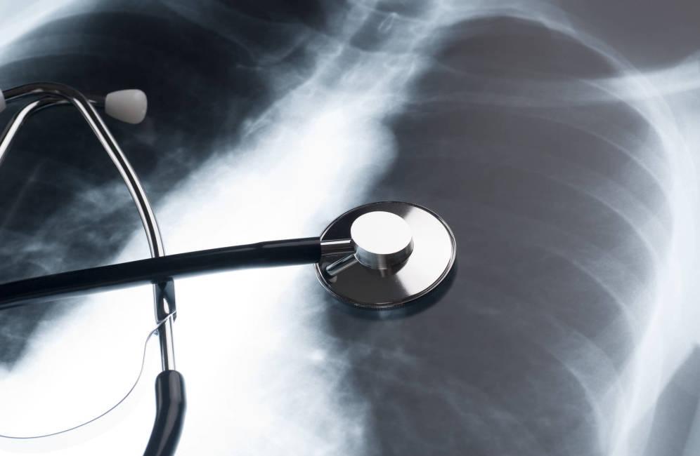 IPN crea sistema para detectar cáncer pulmonar