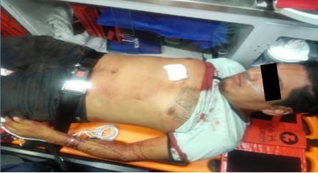 Policías de la SSC apoyan a una persona que sufrió una caída y se lesionó con un objeto punzocortante