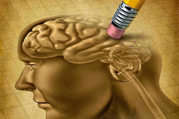 En México, padecen Alzheimer aproximadamente 800 mil personas