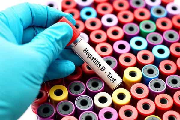 Cada 30 segundos muere en el mundo una persona por hepatitis o sus complicaciones