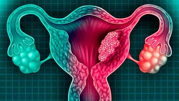 Aumenta el número de casos de mujeres jóvenes con cáncer cervicouterino