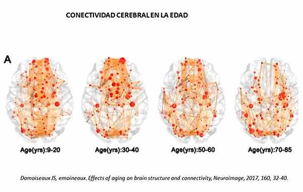 Ancianos sin interacción social afecta su cerebro
