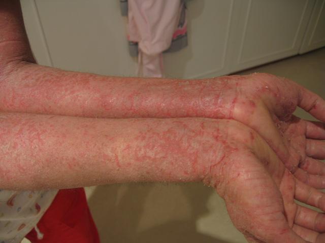 Xerosis, resequedad excesiva de la piel que se presenta en invierno